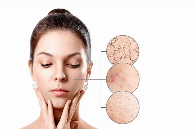 Giovane donna con acne, pelle secca, pelle di punti neri nel cerchio dello zoom. ragazza, ritratto di bellezza. avvicinamento.