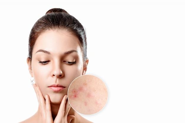 Giovane donna con la pelle dell'acne nel cerchio dello zoom. ragazza, ritratto di bellezza. avvicinamento.