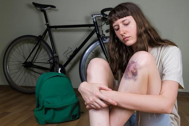 Giovane donna con lividi al ginocchio con ematoma dopo incidente in bicicletta