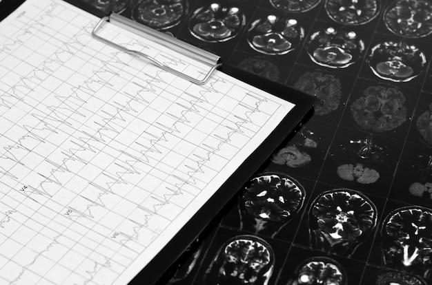 Grafico dell'elettrocardiogramma, analisi del cuore. appunti nero,
