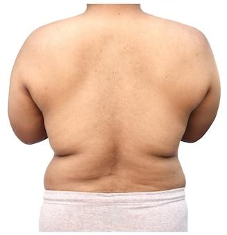 Grasso del corpo dell'uomo su sfondo bianco