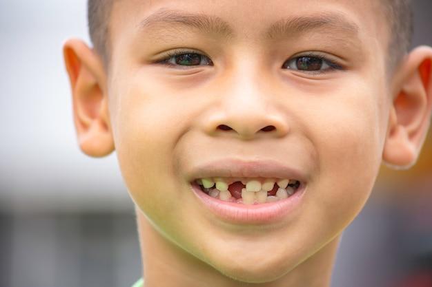 I denti da latte sono appena caduti in bocca.