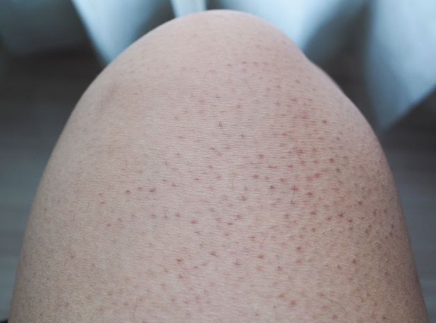 I pori delle gambe sono scuri, grandi e larghi.