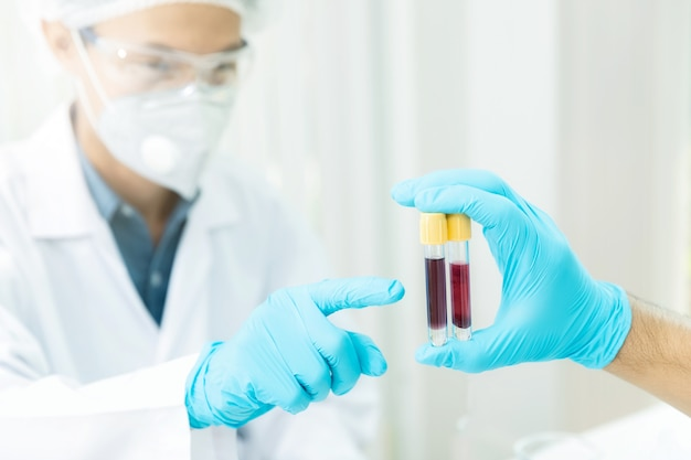 I ricercatori confrontano i campioni di sangue dei pazienti infetti dalla malattia in laboratorio.