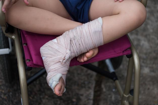 Il bambino si siede sulla sedia a rotelle con la gamba rotta