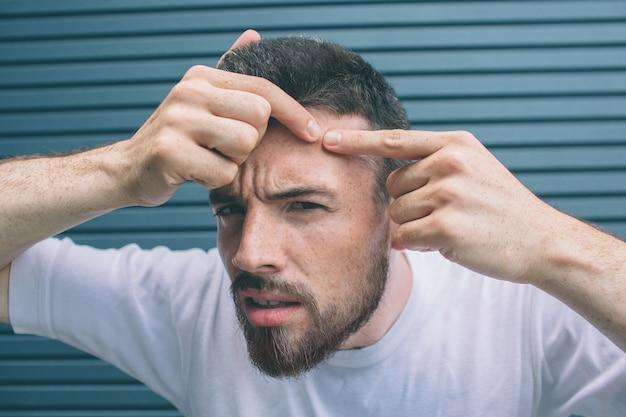 Il giovane sta stringendo il brufolo sul viso. isolato su strisce