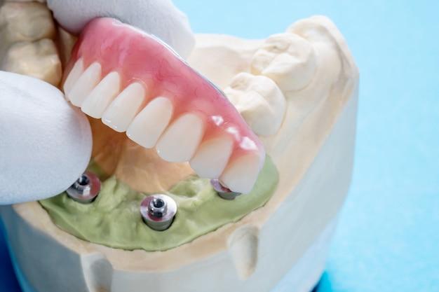 Il lavoro di impianto dentale è completato e pronto per l'uso.