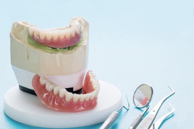 Il lavoro di impianto dentale è completo e pronto per l'uso dell'abutment provvisorio di impianto dentale