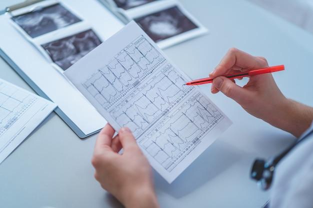 Il medico di famiglia esamina l'elettrocardiogramma del paziente durante un controllo sanitario e una consultazione medica. diagnosi e trattamento della malattia