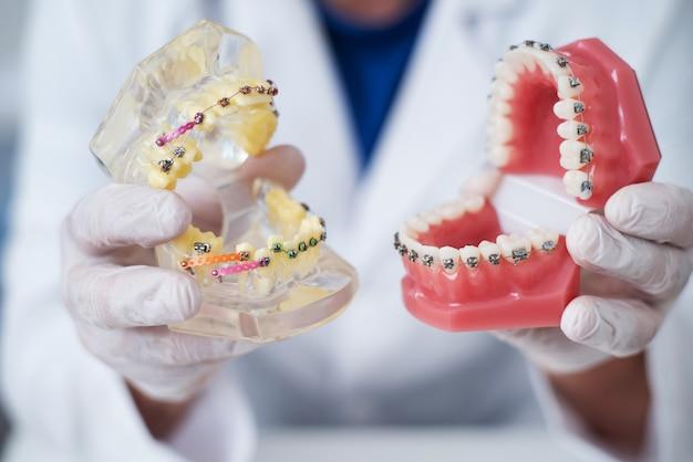 Il medico ortodontista mostra come è organizzato il sistema di parentesi graffe sui denti