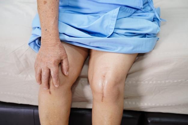 Il paziente asiatico senior della donna le mostra cicatrici sostituzione chirurgica totale dell'articolazione del ginocchio.