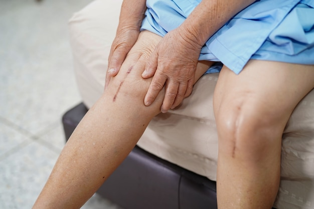 Il paziente asiatico senior della donna le mostra la sostituzione totale chirurgica dell'articolazione del ginocchio delle cicatrici.