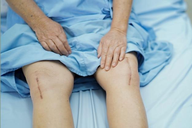 Il paziente senior asiatico della donna le mostra la sostituzione dell'articolazione del ginocchio delle cicatrici.