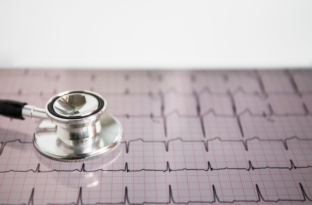 Il primo piano dello stetoscopio sul cuore batte il cardiogramma