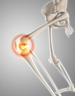 Il rendering 3d di uno scheletro con ginocchio evidenziato mostrare dolore