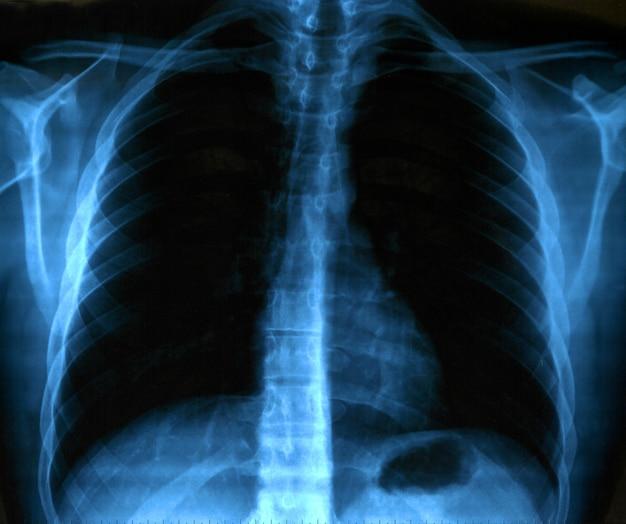 Immagine a raggi x del petto sano umano