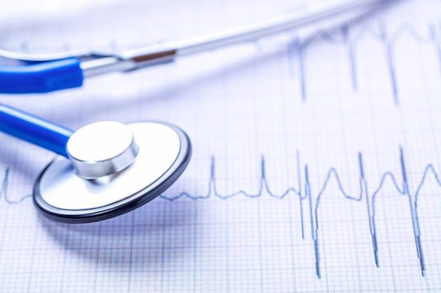 Immagine alta vicina blu del diagramma del cardiogramma e dello stetoscopio.