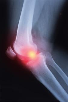 Immagine medica dell'articolazione del ginocchio a raggi x con artrite (gotta, artrite reumatoide, artrite settica