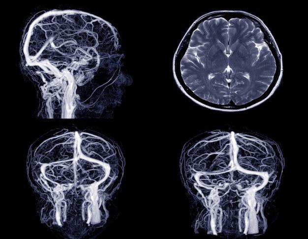 Immagine medica mrv (venografia a risonanza magnetica) cervello di vene in testa umana.