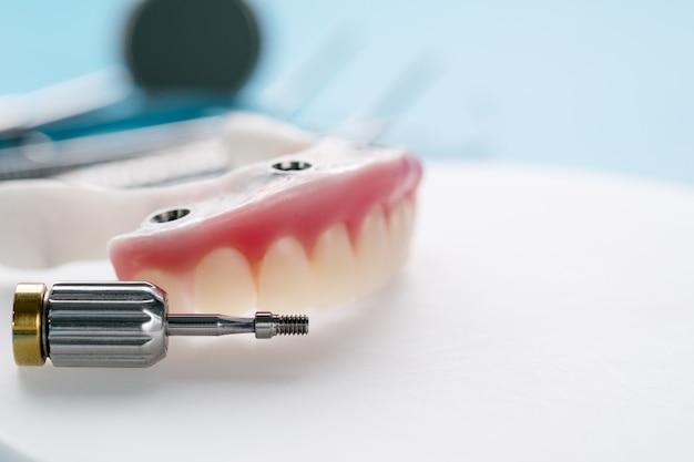 Impianti dentali che supportano overdenture su sfondo blu.