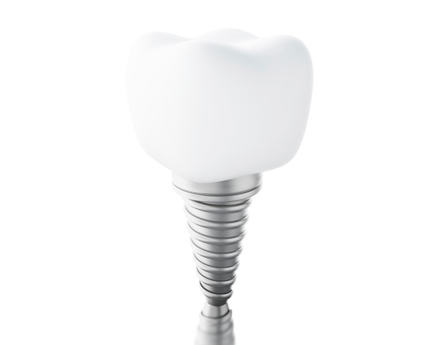 Impianto dentale 3d.