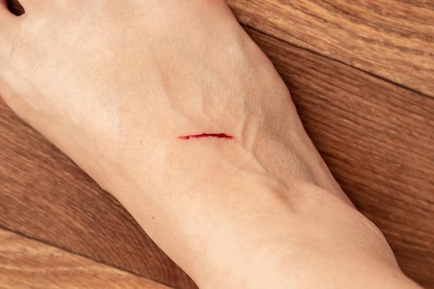Incisione sulla gamba