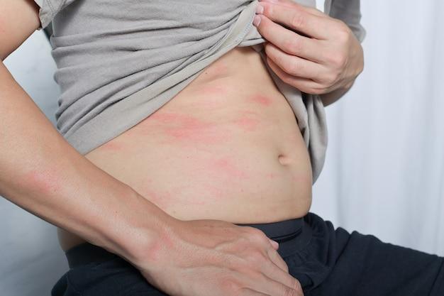 L'allergia è un'eruzione cutanea rossa sul corpo è un'eruzione cutanea causata da un bruco