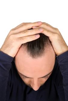 L'uomo controlla la caduta dei capelli