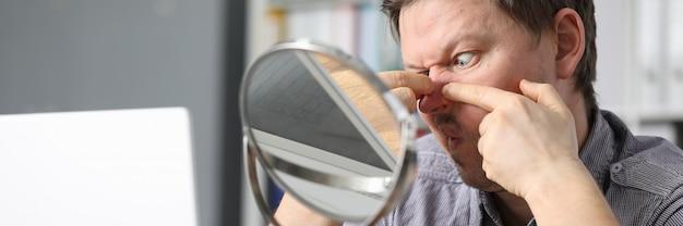 L'uomo si siede davanti a uno specchio e schiaccia l'acne