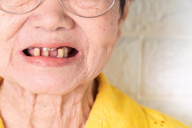 La donna anziana asiatica di età superiore ai 70 anni deve sorridere con qualche dente rotto.