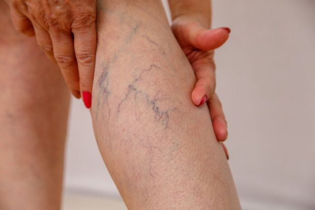 La donna anziana in mutandine bianche mostra cellulite e vene varicose su uno sfondo chiaro isolato.