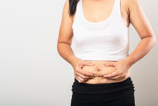 La donna che mostra la smagliatura allenta la pelle inferiore dell'addome che ingrassa dopo la nascita del bambino in gravidanza