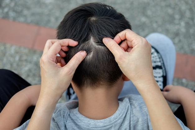 La mamma sta prendendo i capelli per trovare i pidocchi