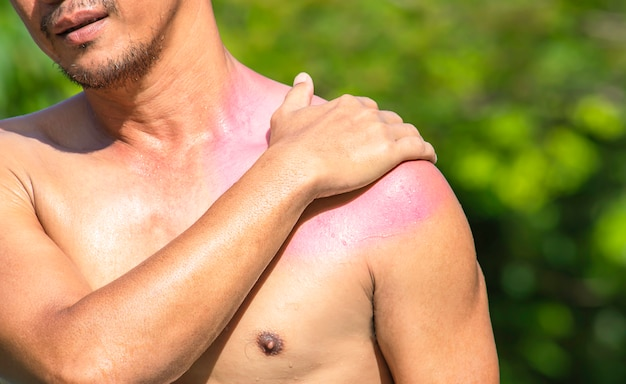 La mano afferra la spalla che l'infiammazione da un infortunio sportivo.