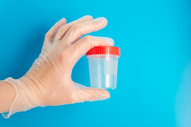 La mano del medico in guanto medico tiene un recipiente di plastica vuoto per le prove su una priorità bassa blu con lo spazio della copia