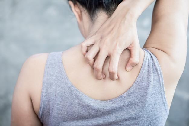 La mano della donna che graffia la pelle che prude