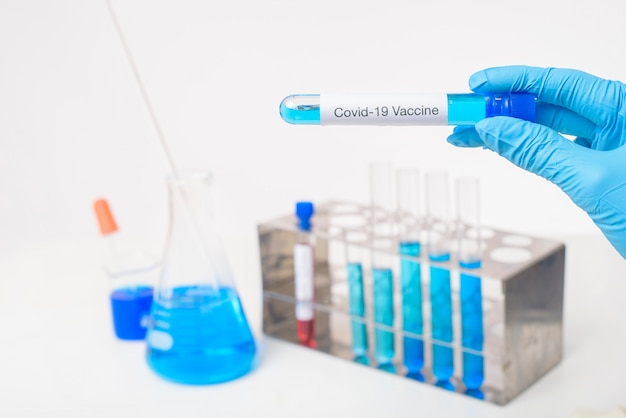 La mano di medico da vicino sta tenendo il vaccino covid-19 in laboratorio