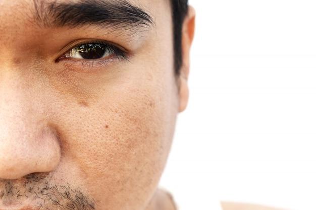 La pelle del viso dell'uomo asiatico dopo non avere l'occhiolino del sonno e non si preoccupa per molto tempo