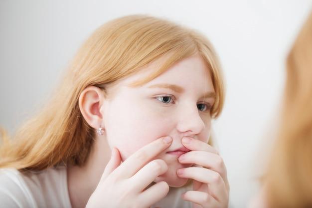 La ragazza teenager esamina l'acne davanti allo specchio