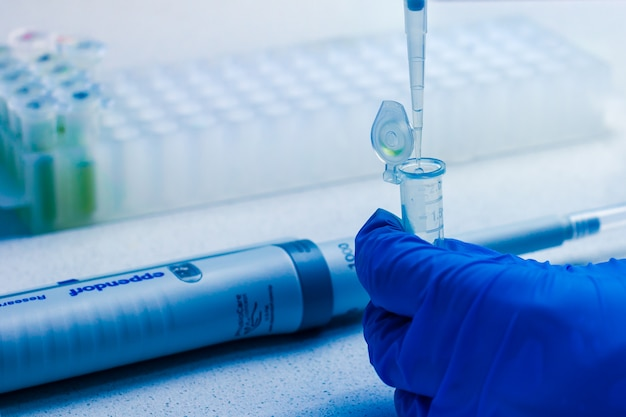 Laboratorio clinico in corso di analisi chimica. raccolta della sonda mediante pipetta automatica eppendorf. berlino, febbraio 2020.