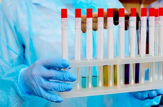 Laboratorio microbiologico. colture di muffe e funghi.