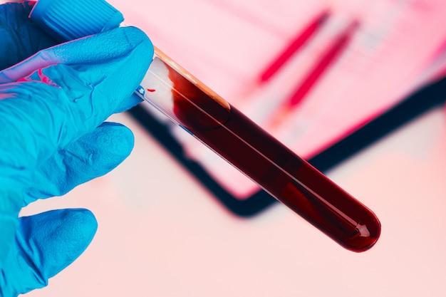 Le mani del medico in guanti blu mantengono la provetta con il sangue