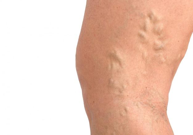 Le vene varicose sulla macro della pelle chiudono sulla medicina di problema di circolazione