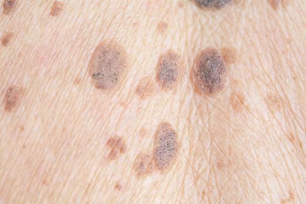 Lentiggini sulla pelle