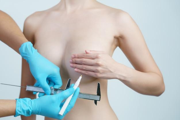 Linee di disegno della mano del medico e seno della donna di misurazione con pinza, concetto di chirurgia della protesi mammaria.