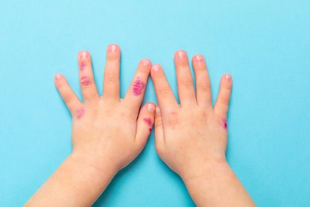 Mano dei bambini con dermatite. eczema a portata di mano. isolato su sfondo blu