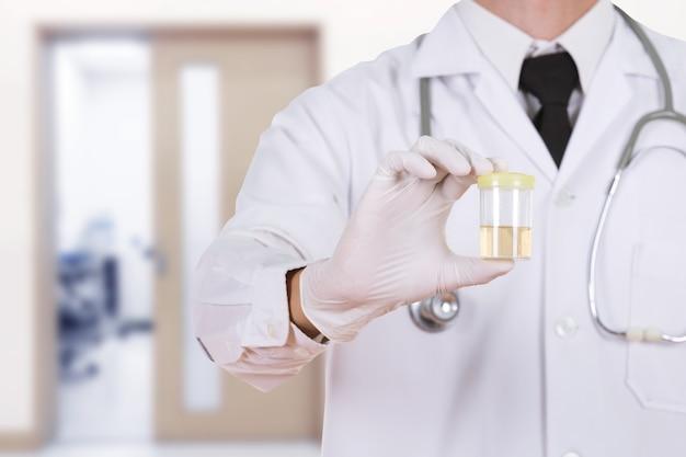Mano del medico che tiene una bottiglia di campione di urina in ospedale