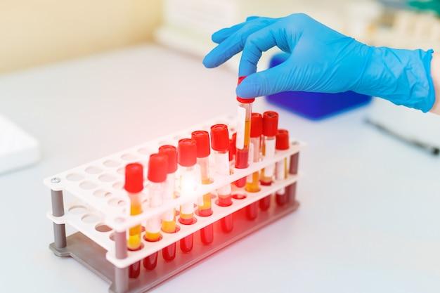 Mano del medico prendendo una provetta per campioni di sangue da un rack.