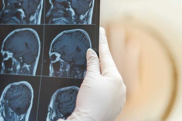 Mano del radiologo che tiene il film del cervello di rmi per vedere per diagnosticare e segnalare