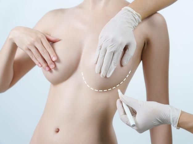 Mano di medico disegnando linee sul seno della donna, concetto di chirurgia della protesi mammaria.